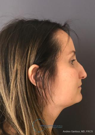 Rhinoplasty: Patient 3 - After Image 5
