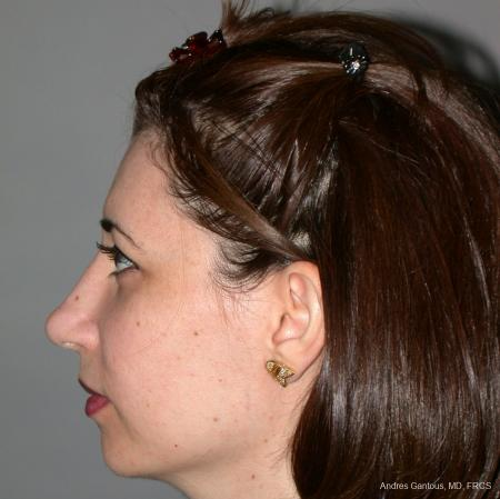 Rhinoplasty: Patient 42 - After Image 5