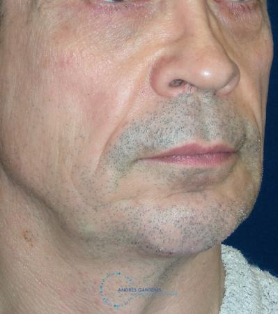 Chin Augmentation: Patient 3 - After Image 2