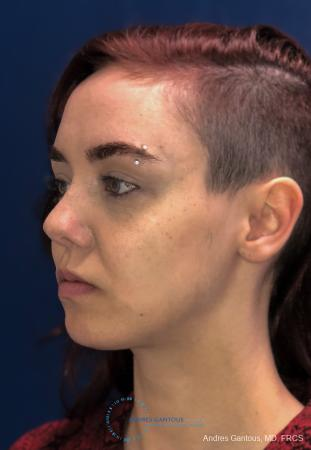 Revision Rhinoplasty: Patient 11 - Before Image 3