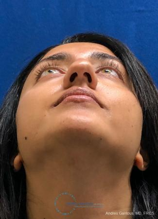 Rhinoplasty: Patient 84 - Before Image 2