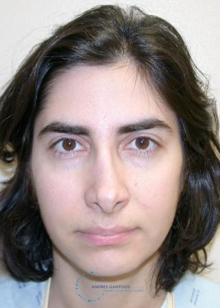 Revision Rhinoplasty: Patient 15 - Before Image 1