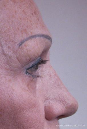 Eyelid Lift: Patient 8 - Before Image 3