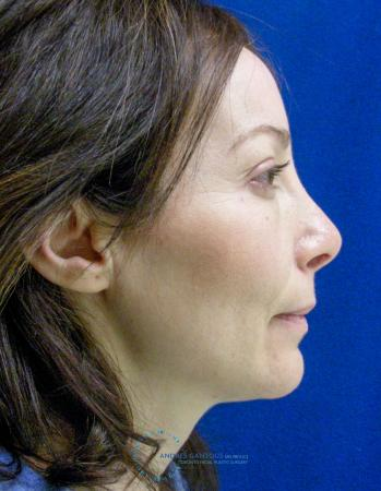 Revision Rhinoplasty: Patient 2 - After 4