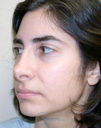 Revision Rhinoplasty: Patient 15 - Before Image 3