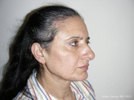 Eyelid Lift: Patient 1 - After Image 2
