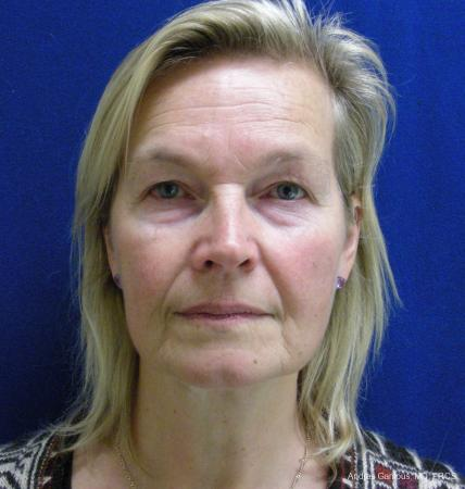 Facelift & Neck Lift: Patient 3 - Before Image 1
