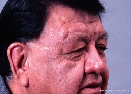 Eyelid Lift: Patient 3 - Before Image 2