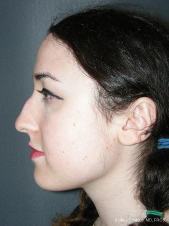 Rhinoplasty: Patient 59 - Before Image 5