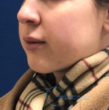 Chin Augmentation: Patient 8 - After Image 2
