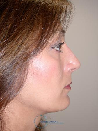 Revision Rhinoplasty: Patient 19 - After Image 3