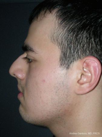 Rhinoplasty: Patient 56 - Before and After Image 5