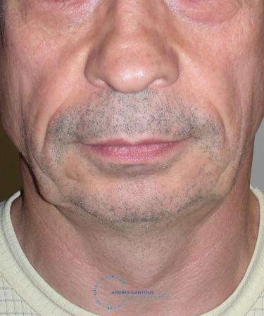 Chin Augmentation: Patient 3 - Before Image 1
