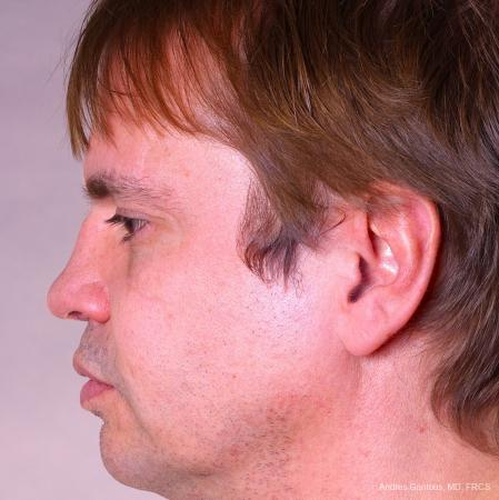 Rhinoplasty: Patient 39 - After Image 5