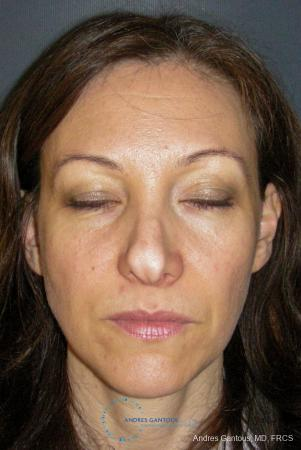 Revision Rhinoplasty: Patient 14 - Before Image 1