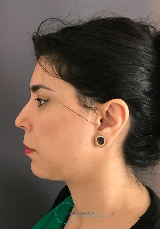 Revision Rhinoplasty: Patient 18 - Before and After Image 6