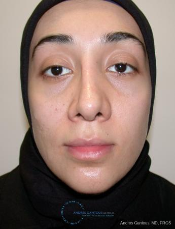Revision Rhinoplasty: Patient 5 - Before Image 1