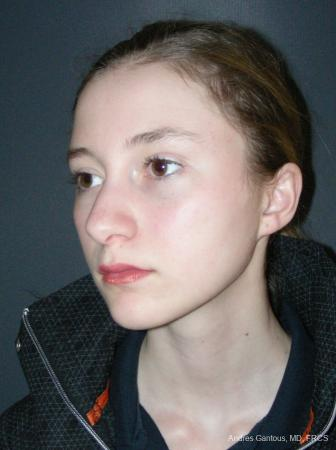 Rhinoplasty: Patient 57 - Before Image 4