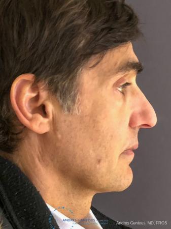 Rhinoplasty: Patient 81 - Before Image 5