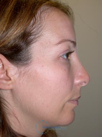 Revision Rhinoplasty: Patient 2 - Before 4