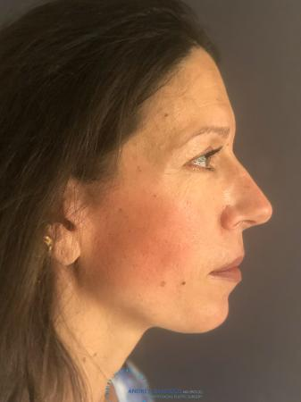 Rhinoplasty: Patient 9 - After Image 4