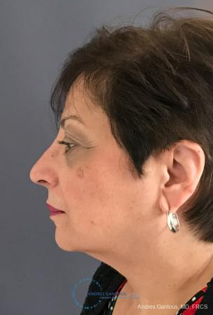 Rhinoplasty: Patient 94 - After Image 6