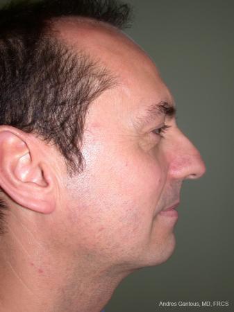 Rhinoplasty: Patient 11 - Before Image 3