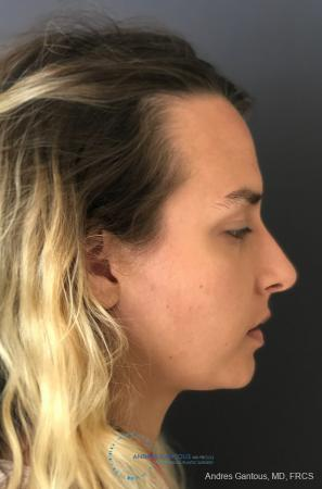 Rhinoplasty: Patient 90 - After Image 5