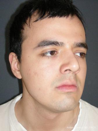 Rhinoplasty: Patient 56 - After Image 2