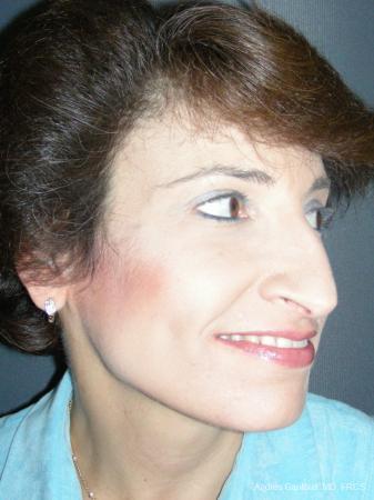 Rhinoplasty: Patient 51 - Before Image 4