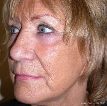 Facelift & Neck Lift: Patient 4 - After Image 2