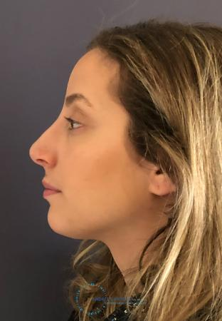 Rhinoplasty: Patient 74 - After Image 6