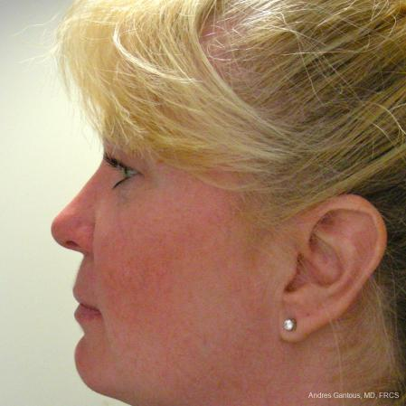 Rhinoplasty: Patient 38 - After Image 5