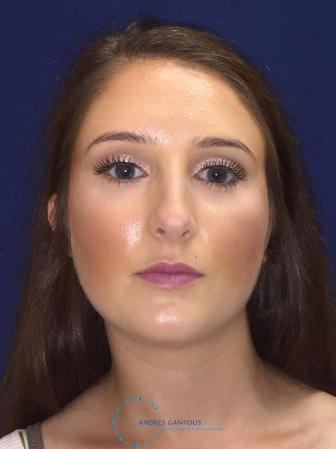 Rhinoplasty: Patient 1 - Before Image