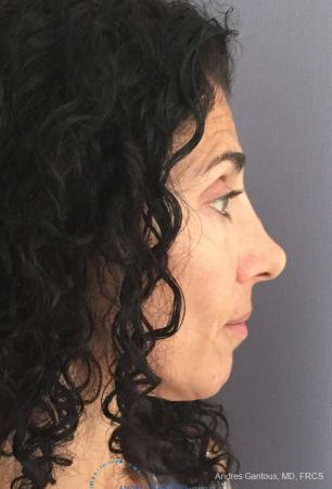 Revision Rhinoplasty: Patient 6 - Before and After Image 6
