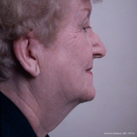 Facelift & Neck Lift: Patient 7 - Before and After Image 3
