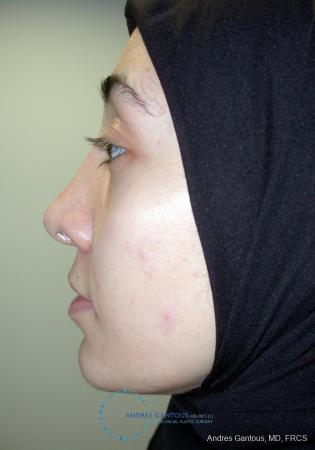 Revision Rhinoplasty: Patient 5 - Before and After Image 6