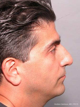 Rhinoplasty: Patient 25 - Before and After Image 4