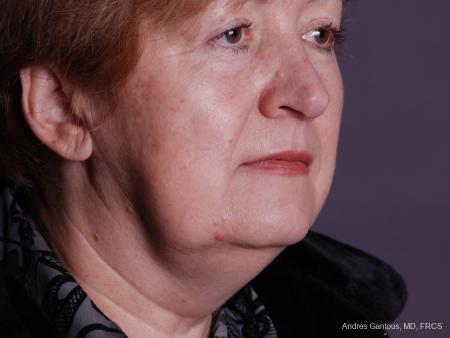 Facelift & Neck Lift: Patient 9 - After Image 2
