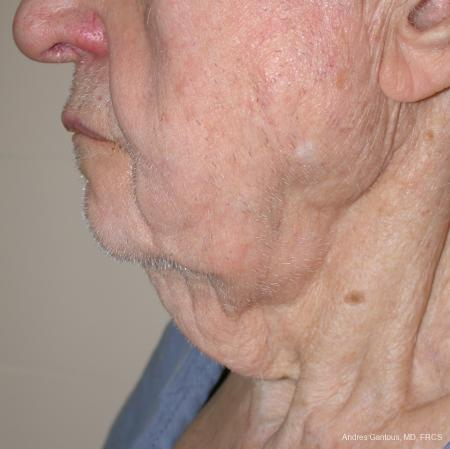 Facelift & Neck Lift: Patient 5 - Before and After Image 2