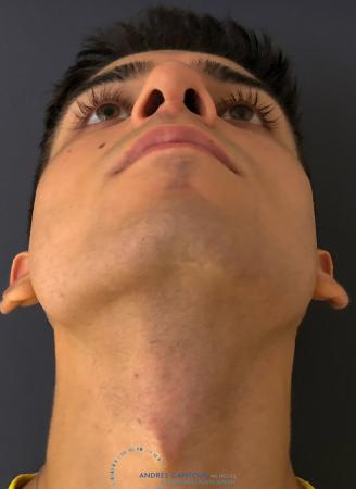 Rhinoplasty: Patient 67 - After Image 2