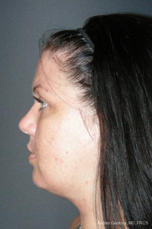 Facelift & Neck Lift: Patient 11 - After Image 5