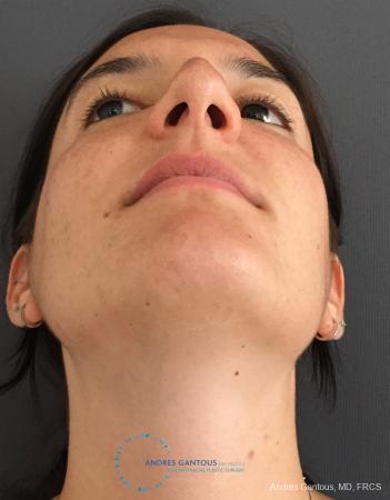Rhinoplasty: Patient 86 - Before Image 2