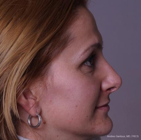 Rhinoplasty: Patient 36 - After Image 4