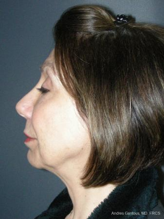 Rhinoplasty: Patient 55 - After Image 3