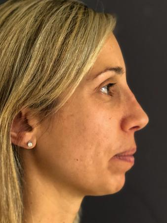 Rhinoplasty: Patient 75 - After Image 4