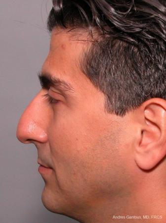 Rhinoplasty: Patient 25 - Before Image 3