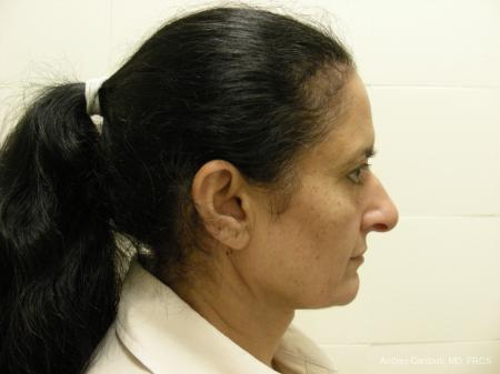 Eyelid Lift: Patient 1 - Before Image 3
