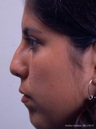 Rhinoplasty: Patient 20 - Before and After Image 5