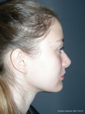 Rhinoplasty: Patient 57 - After Image 3